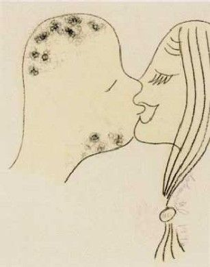 Lithograph Dokoupil - Beso